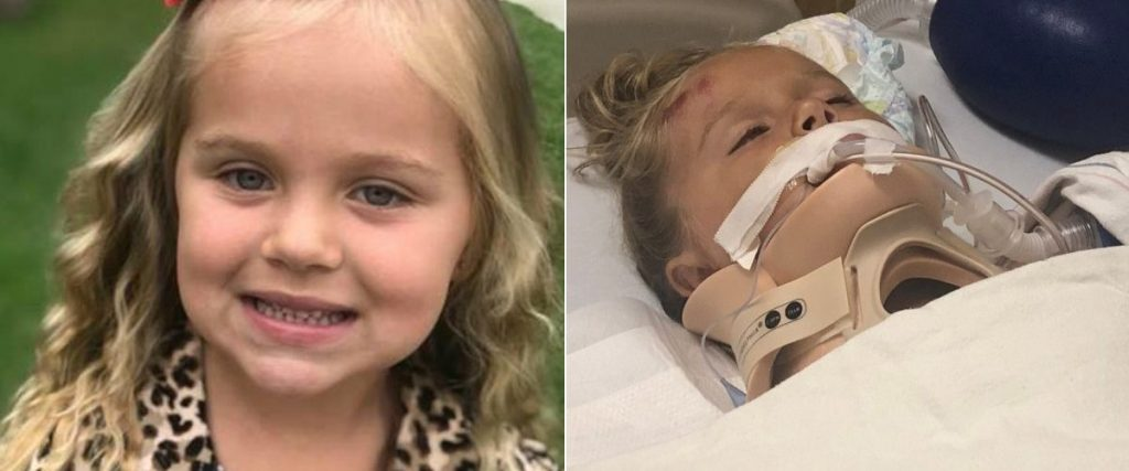 Hit and Run Accident in Lakewood Injures 5-year-Old Girl
