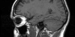 Mild Traumatic Brain Injuries After a Car Accident